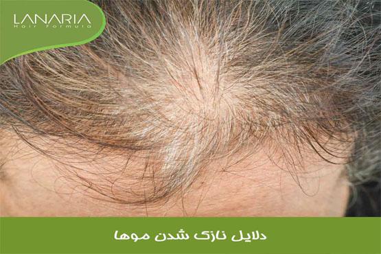 دلایل نازک شدن مو