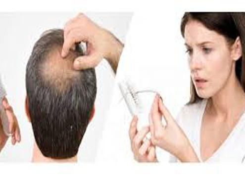 ریزش مو، درمان ریزش مو