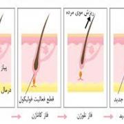 مراحل رشد مو